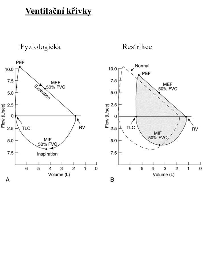 Ventilační křivky Fyziologická Restrikce Flow-volume loops.