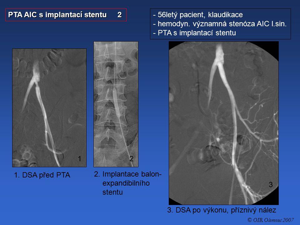 PTA AIC s implantací stentu 2 56letý pacient, klaudikace
