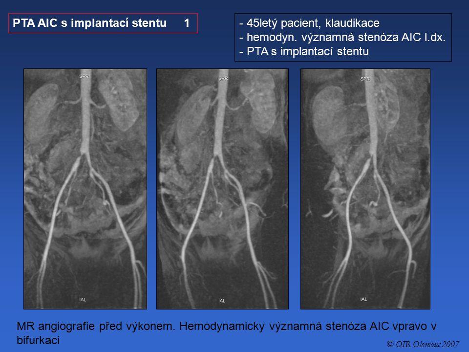 PTA AIC s implantací stentu 1 45letý pacient, klaudikace