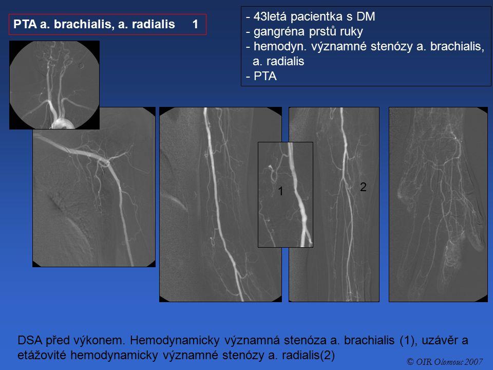 hemodyn. významné stenózy a. brachialis, a. radialis - PTA