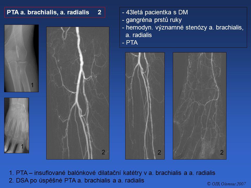 PTA a. brachialis, a. radialis 2 43letá pacientka s DM