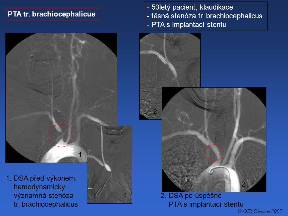 53letý pacient, klaudikace těsná stenóza tr. brachiocephalicus
