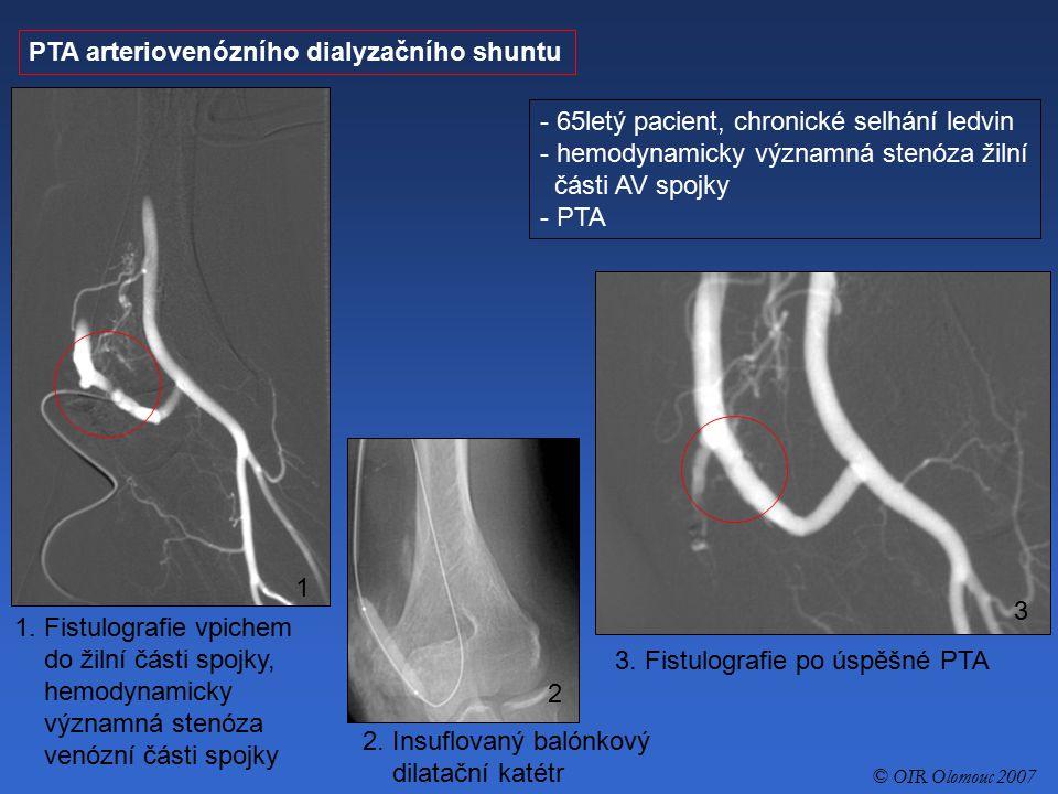 PTA arteriovenózního dialyzačního shuntu