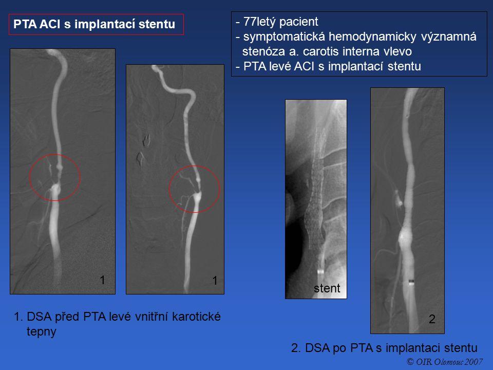 PTA ACI s implantací stentu 77letý pacient
