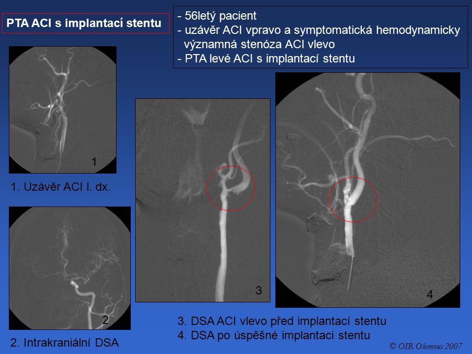 uzávěr ACI vpravo a symptomatická hemodynamicky