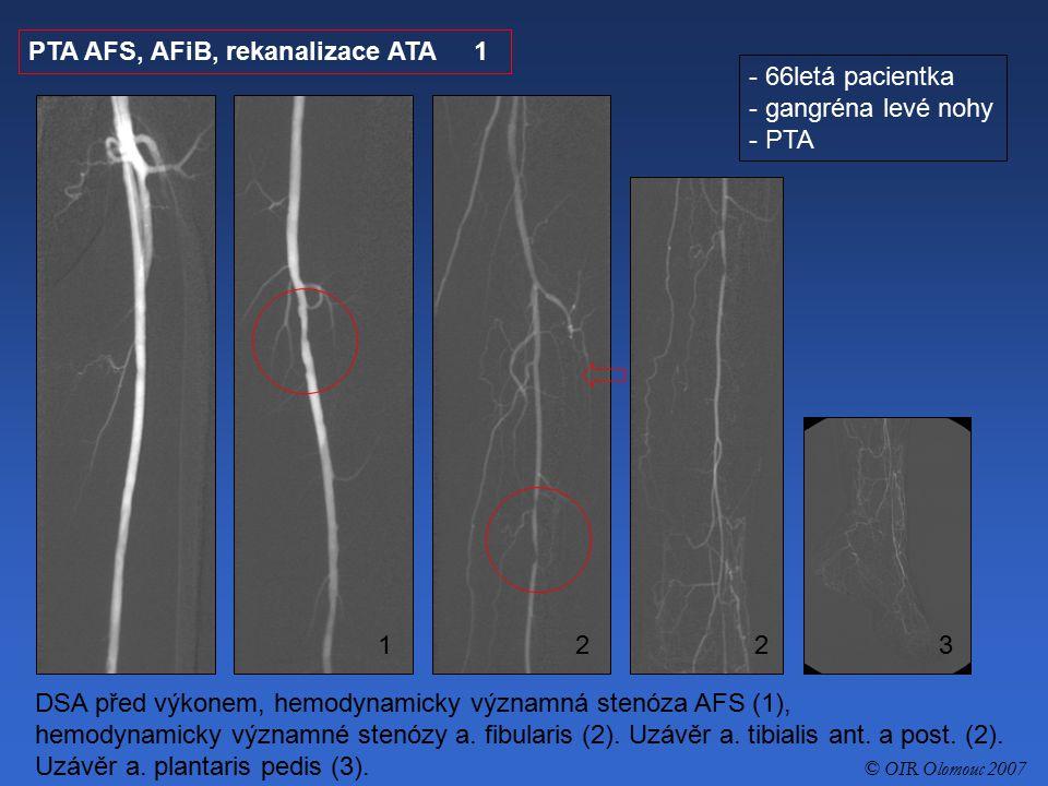 PTA AFS, AFiB, rekanalizace ATA 1 66letá pacientka gangréna levé nohy