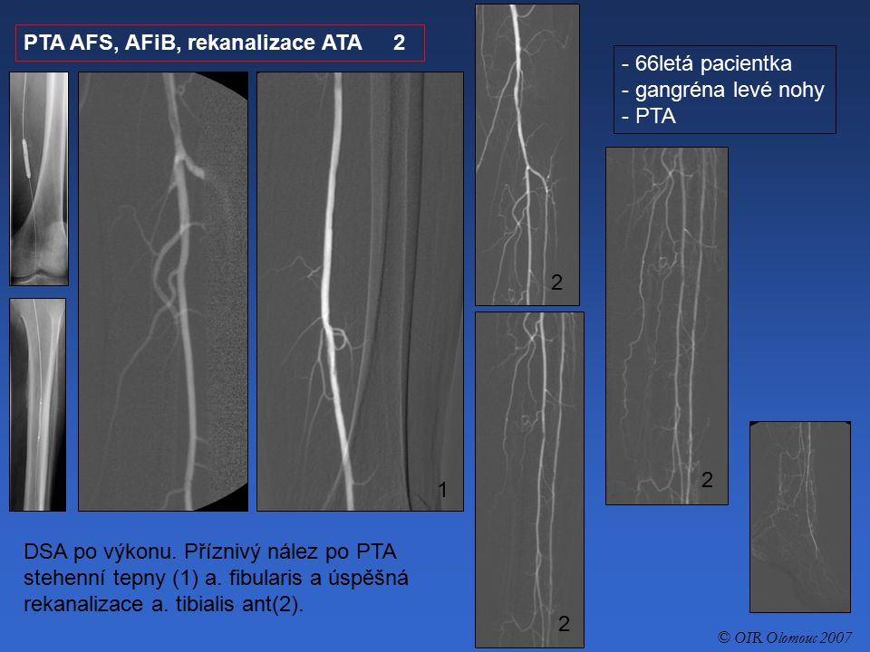 PTA AFS, AFiB, rekanalizace ATA 2 66letá pacientka gangréna levé nohy