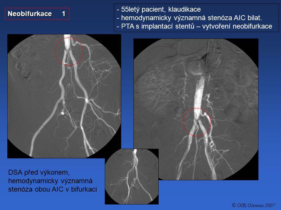 55letý pacient, klaudikace hemodynamicky významná stenóza AIC bilat.