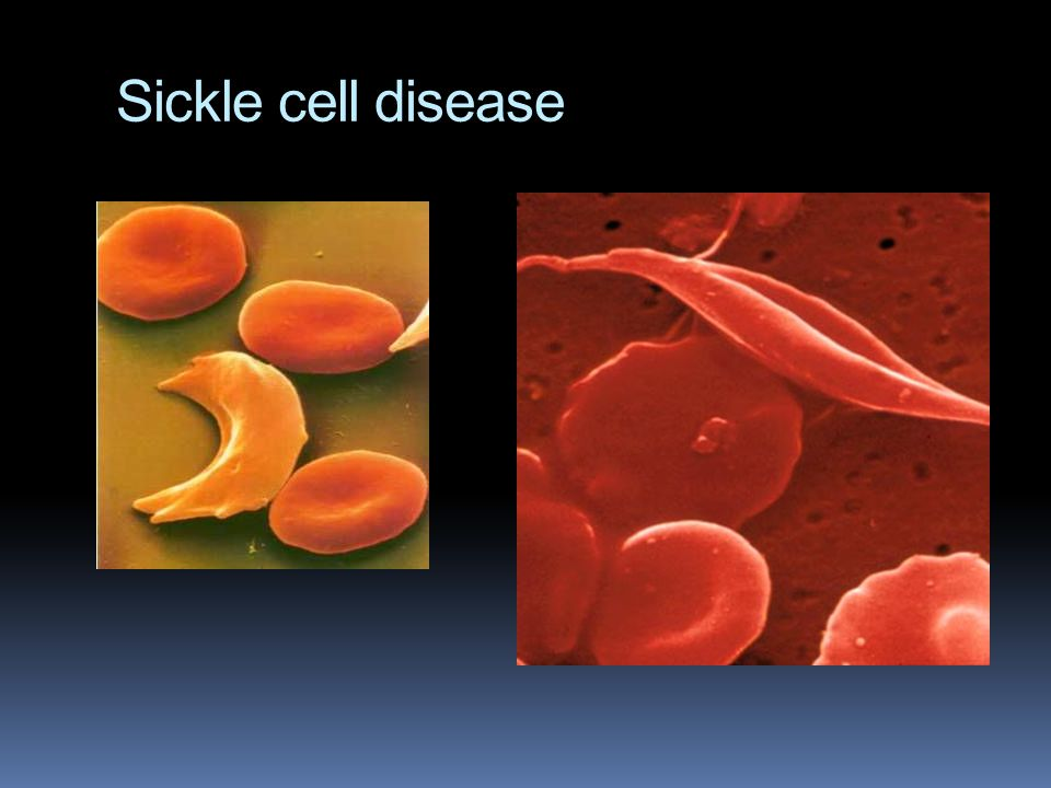 Sickle cell disease