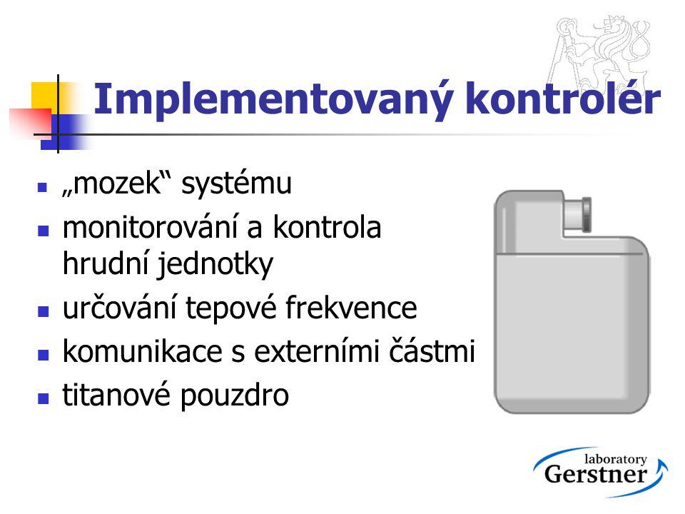 Implementovaný kontrolér