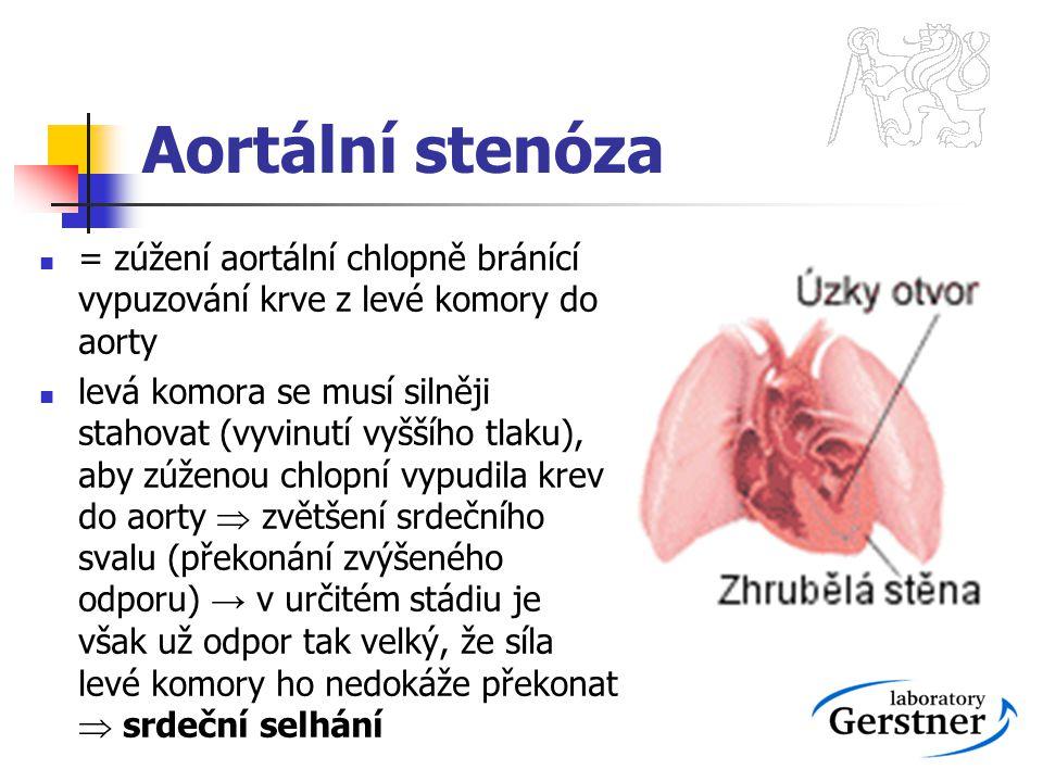 Aortální stenóza = zúžení aortální chlopně bránící vypuzování krve z levé komory do aorty.