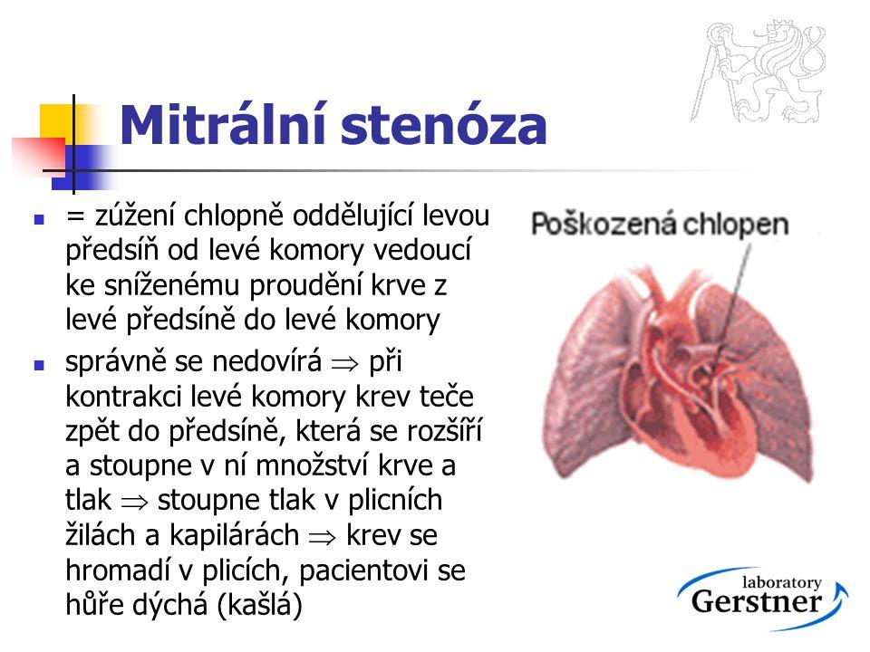 Mitrální stenóza = zúžení chlopně oddělující levou předsíň od levé komory vedoucí ke sníženému proudění krve z levé předsíně do levé komory.