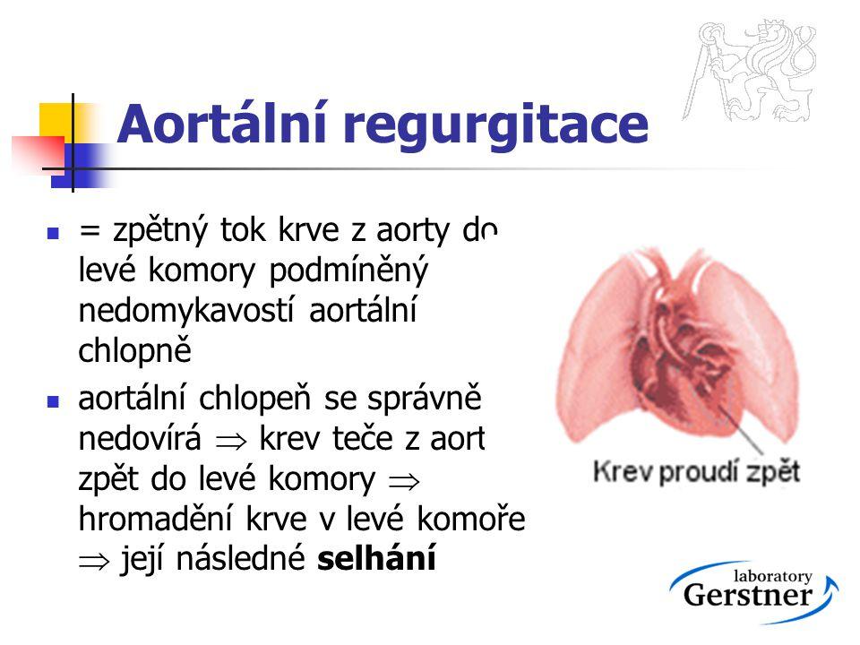Aortální regurgitace = zpětný tok krve z aorty do levé komory podmíněný nedomykavostí aortální chlopně.