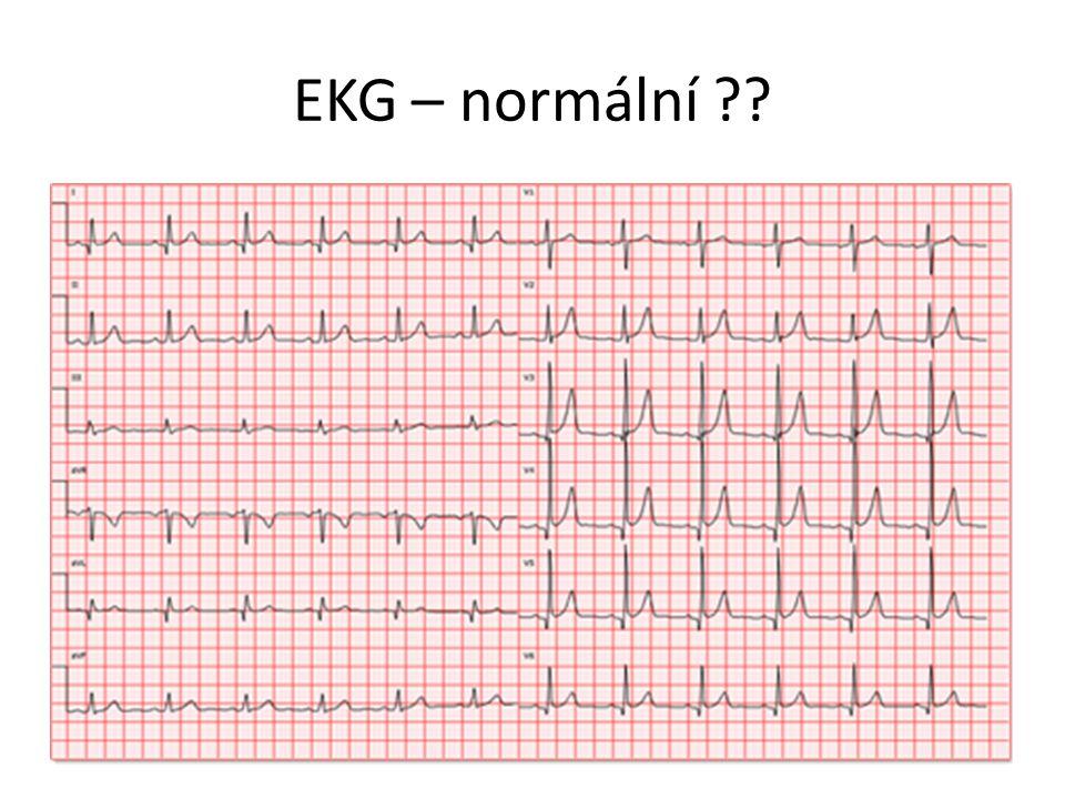 EKG – normální