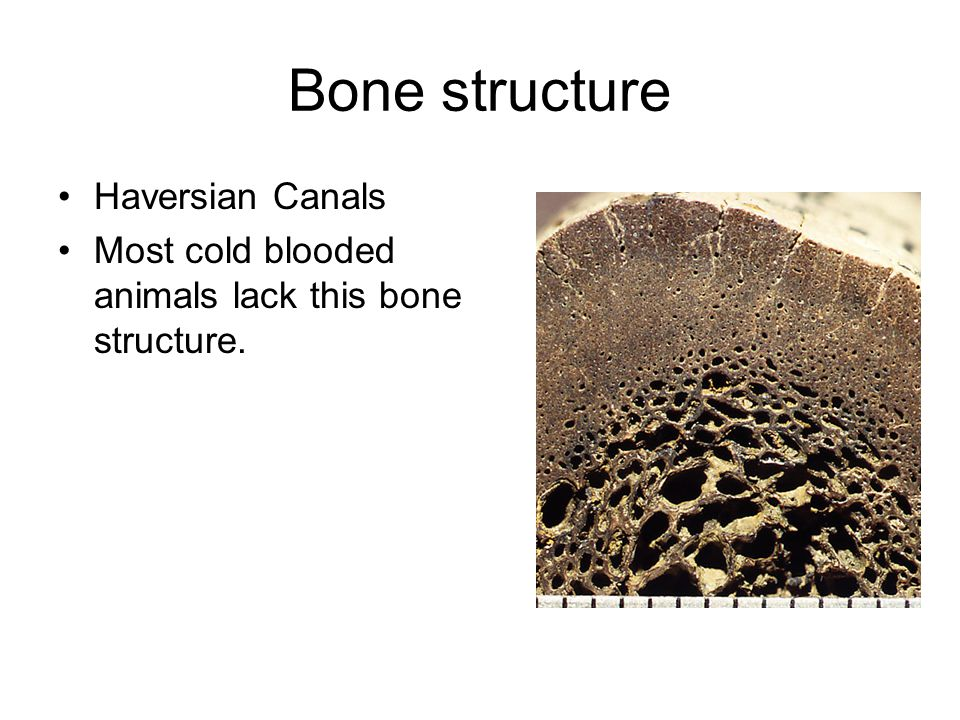 Bone structure Haversian Canals