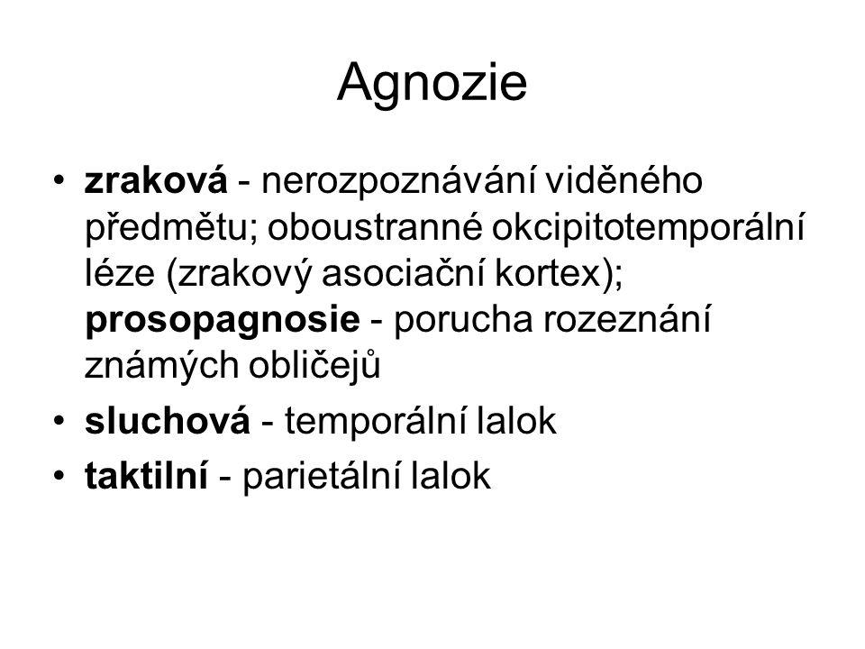 Agnozie