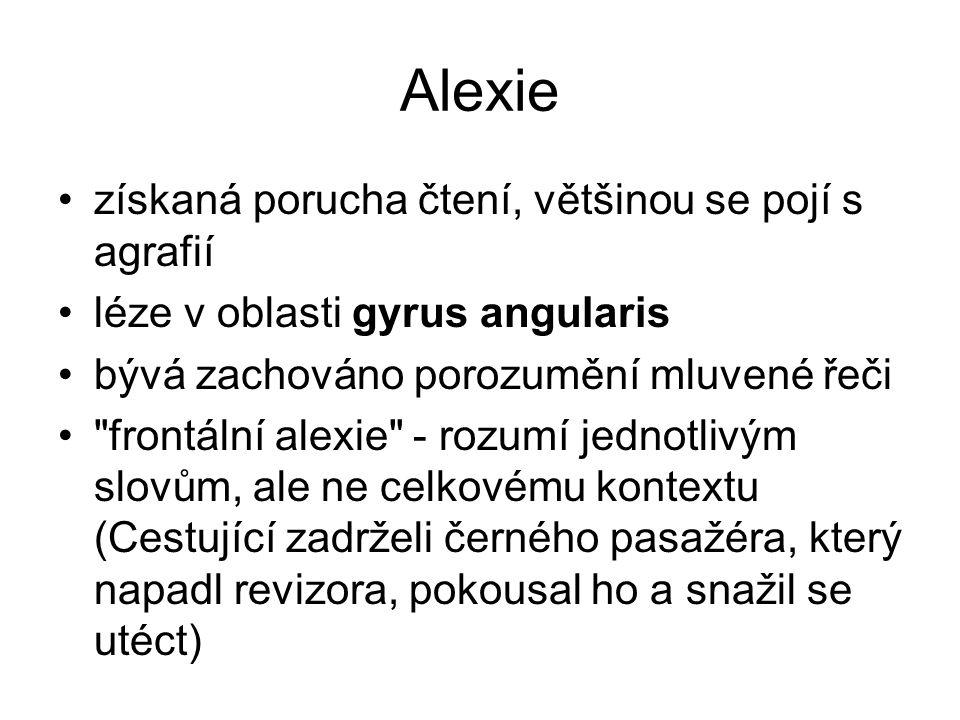 Alexie získaná porucha čtení, většinou se pojí s agrafií