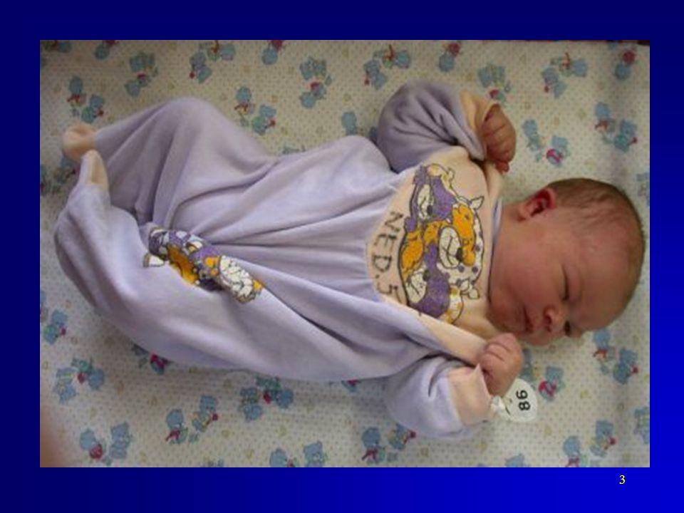 """Je nezbytné si rovněž uvědomit, co všechno se může skrývat pod pojmem """"novorozenec - Novorozenec s porodní hmotností nad 5000g – donošený, hypertrofický."""