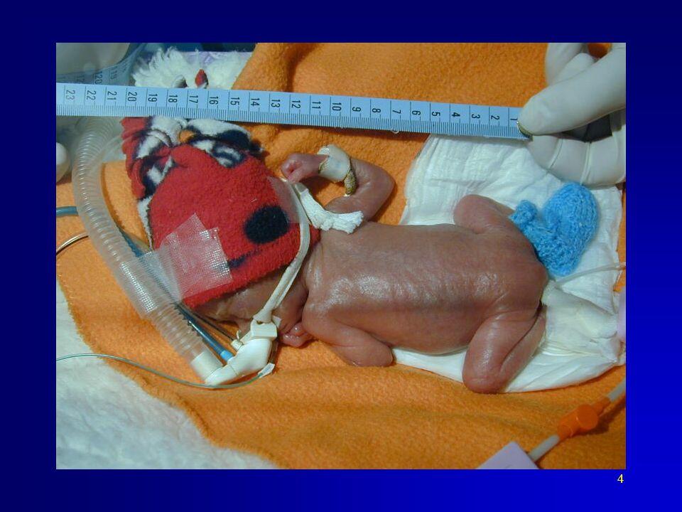 Těžce nezralý novorozenec, nezralost je v tomto případě ještě kombinovaná s hypotrofií.
