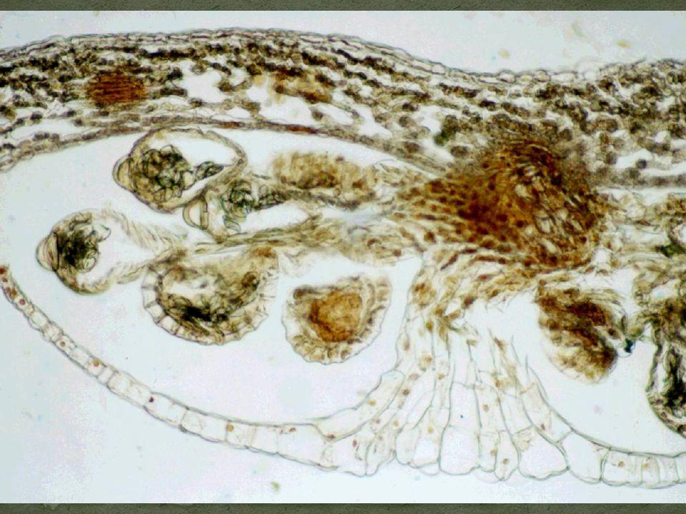 Příčný řez výtrusnou kupkou (sorus) a ostěrou (indusium) kapradě samce