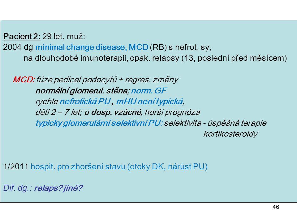 2004 dg minimal change disease, MCD (RB) s nefrot. sy,