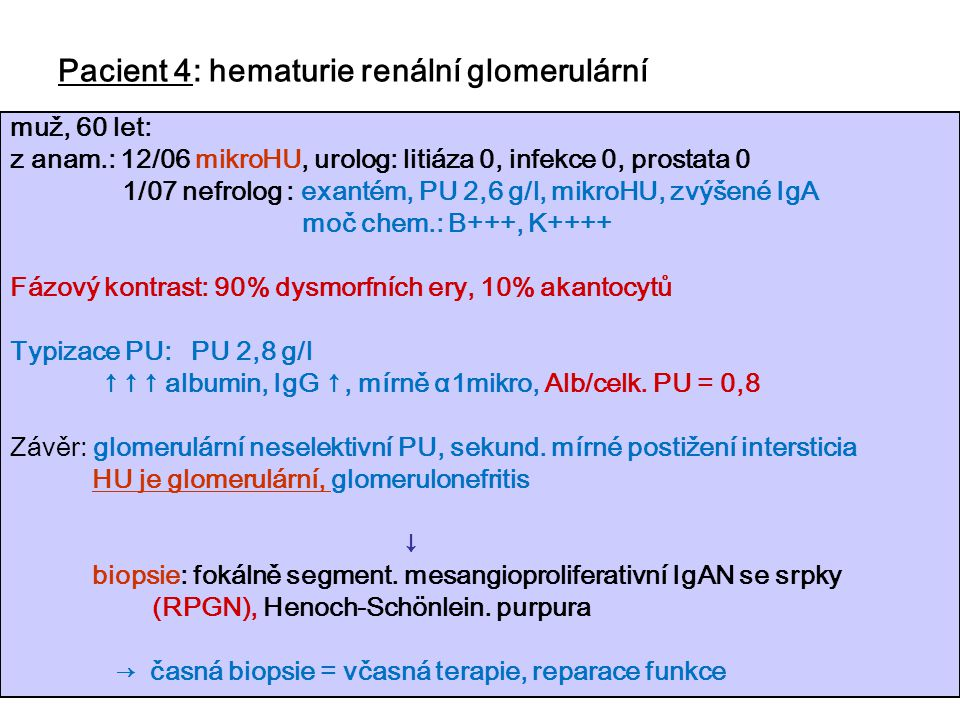 Pacient 4: hematurie renální glomerulární
