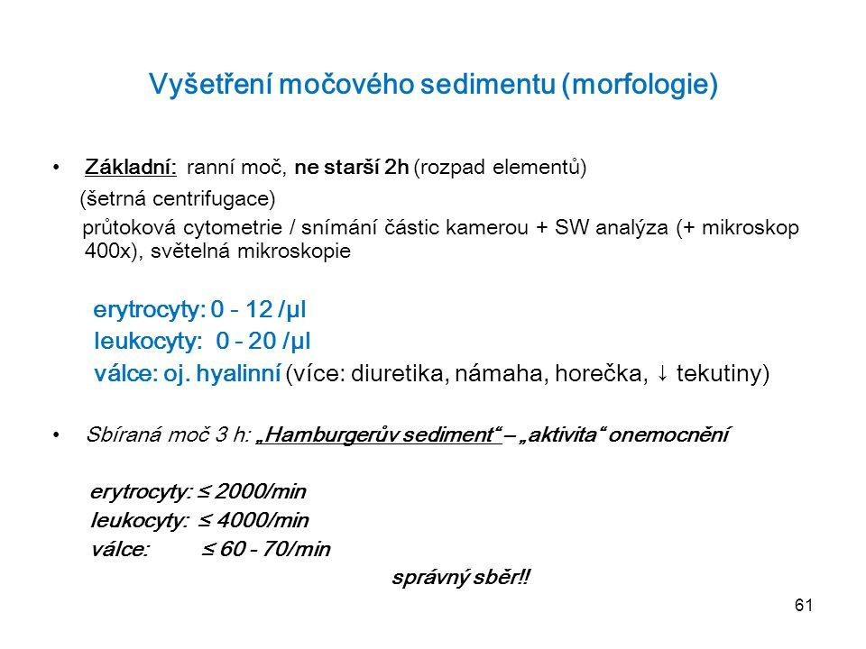 Vyšetření močového sedimentu (morfologie)