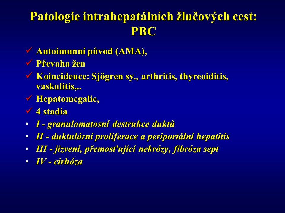 Patologie intrahepatálních žlučových cest: PBC