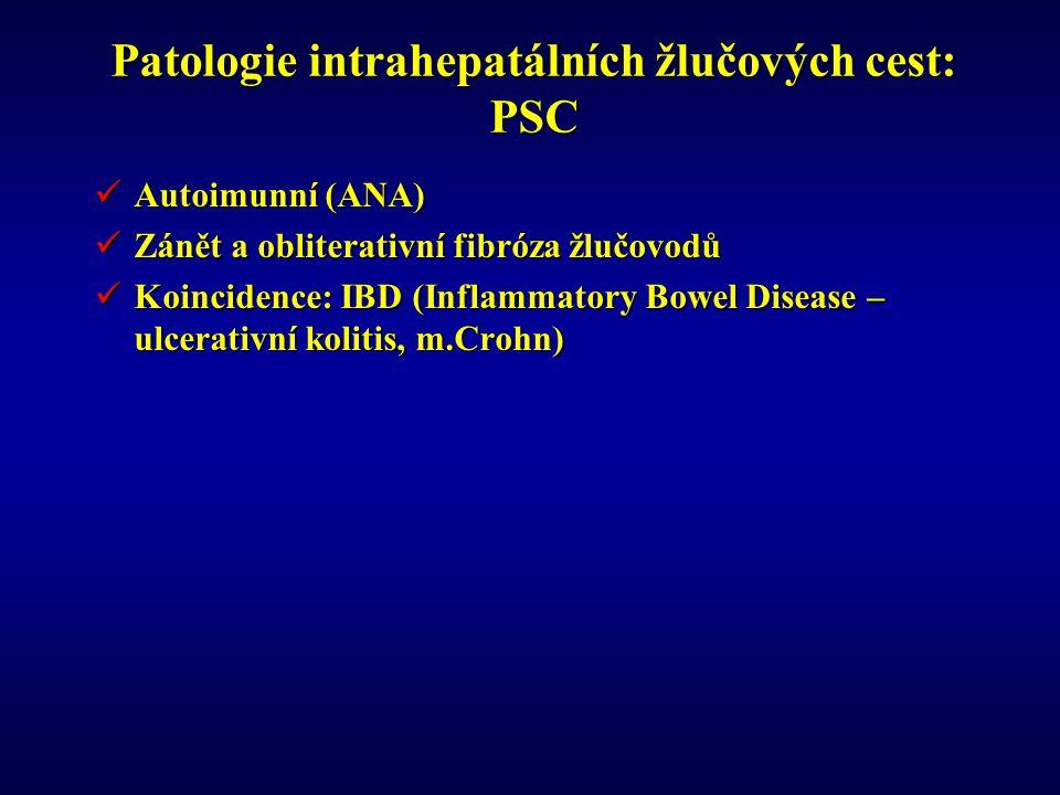 Patologie intrahepatálních žlučových cest: PSC