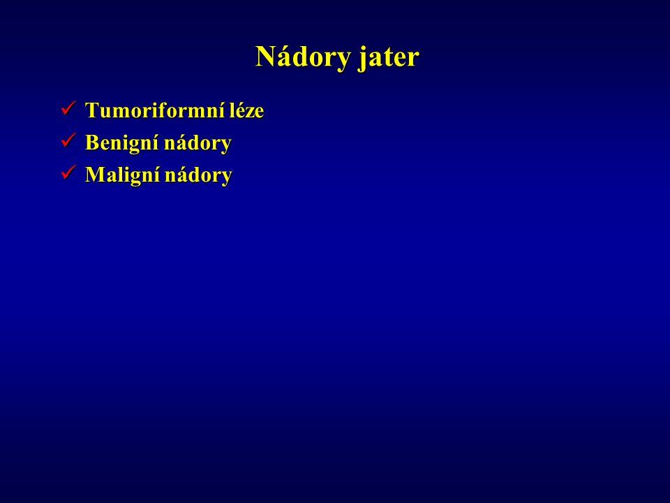 Nádory jater Tumoriformní léze Benigní nádory Maligní nádory
