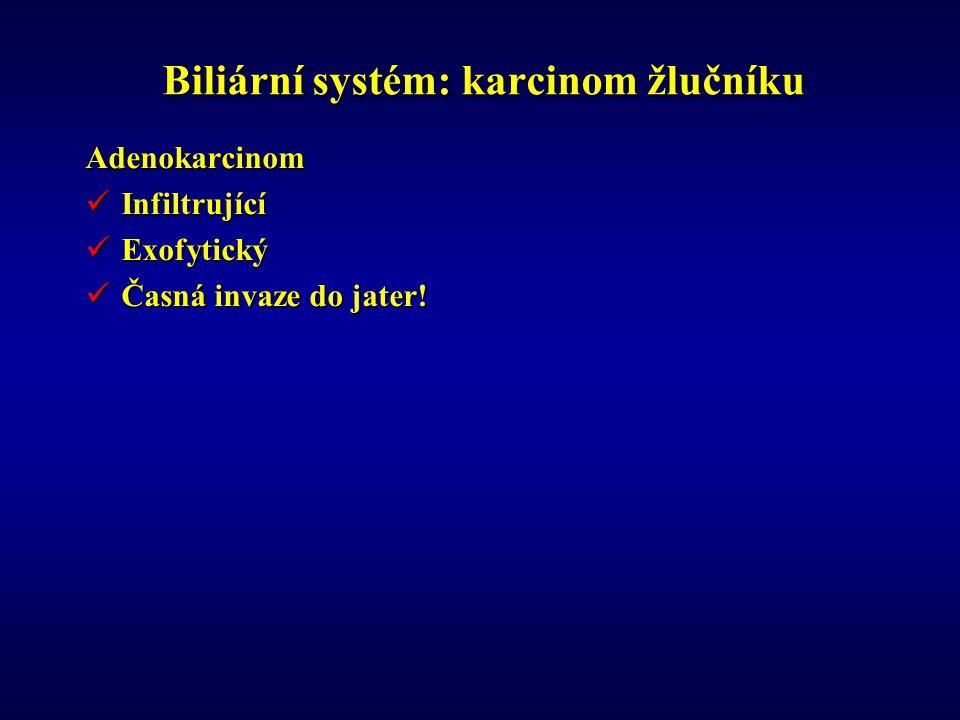 Biliární systém: karcinom žlučníku