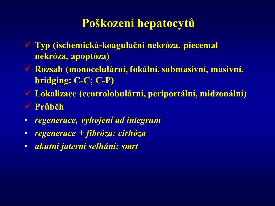 Poškození hepatocytů Typ (ischemická-koagulační nekróza, piecemal nekróza, apoptóza)