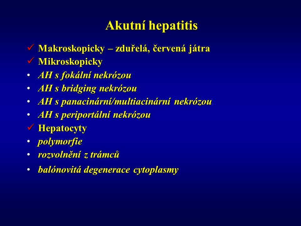 Akutní hepatitis Makroskopicky – zduřelá, červená játra Mikroskopicky