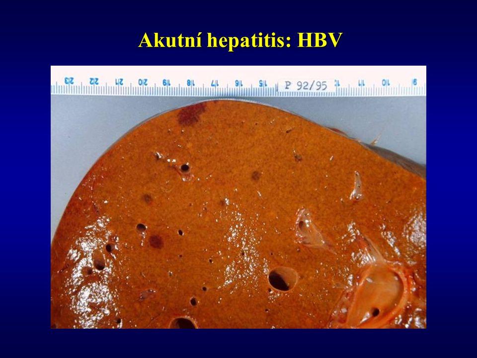 Akutní hepatitis: HBV