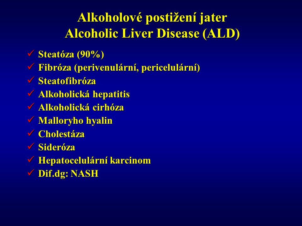 Alkoholové postižení jater Alcoholic Liver Disease (ALD)