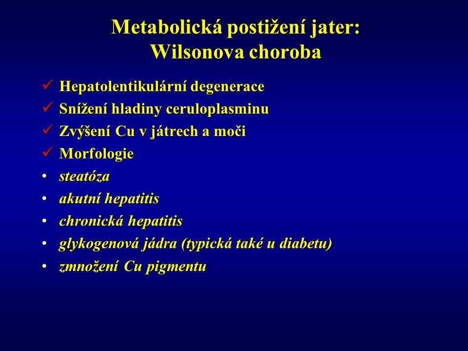 Metabolická postižení jater: Wilsonova choroba