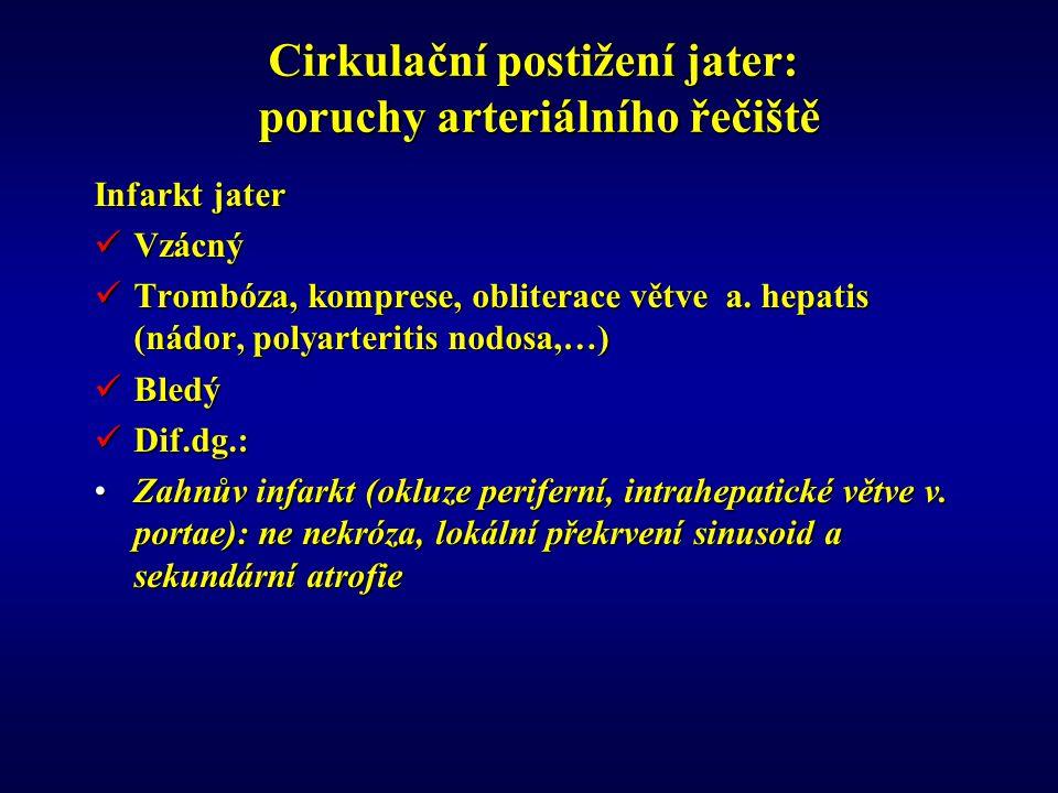 Cirkulační postižení jater: poruchy arteriálního řečiště