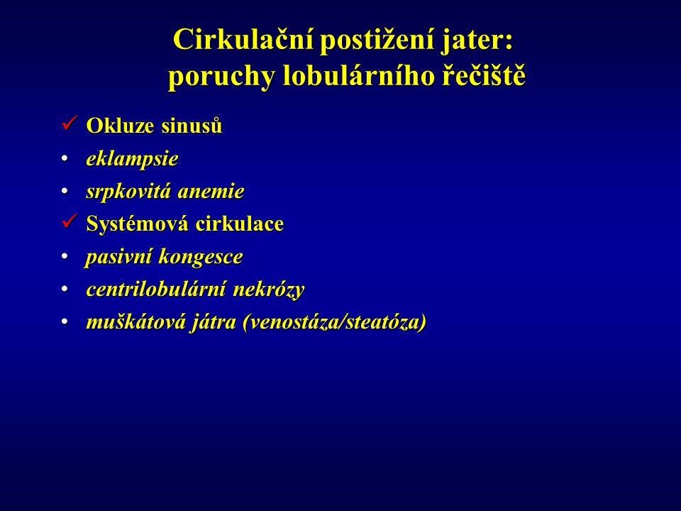 Cirkulační postižení jater: poruchy lobulárního řečiště