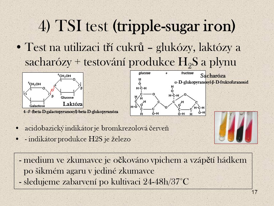 4) TSI test (tripple-sugar iron)