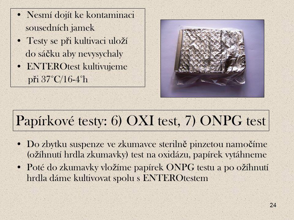 Papírkové testy: 6) OXI test, 7) ONPG test