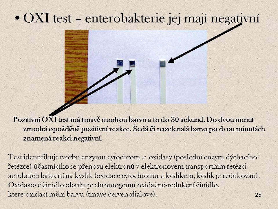 OXI test – enterobakterie jej mají negativní