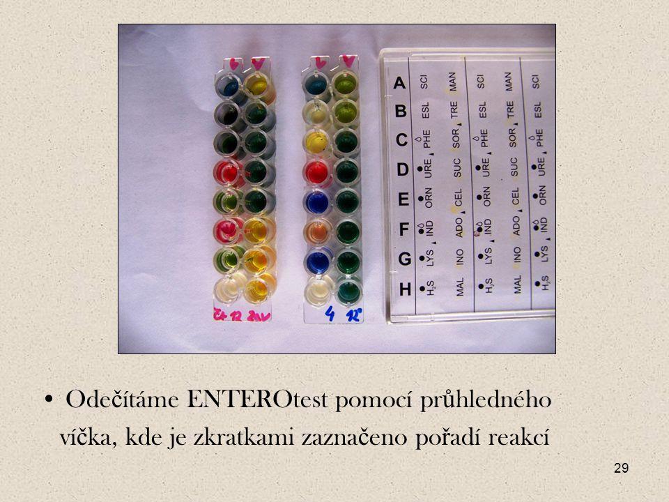 Odečítáme ENTEROtest pomocí průhledného