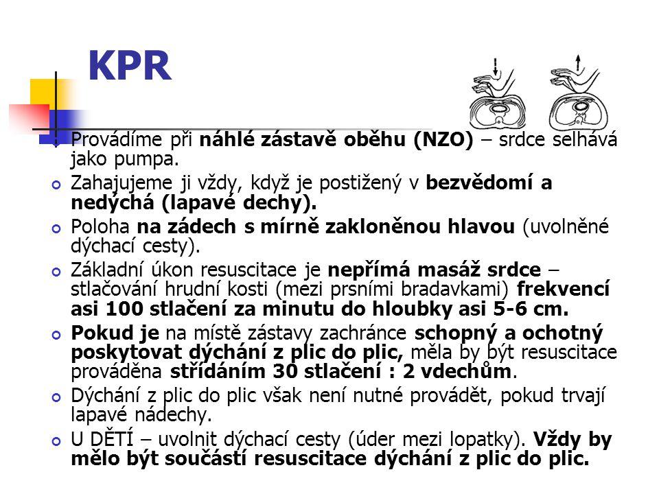 KPR Provádíme při náhlé zástavě oběhu (NZO) – srdce selhává jako pumpa. Zahajujeme ji vždy, když je postižený v bezvědomí a nedýchá (lapavé dechy).