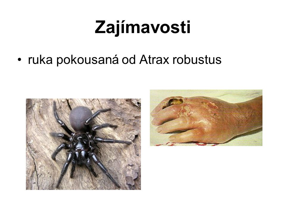 Zajímavosti ruka pokousaná od Atrax robustus