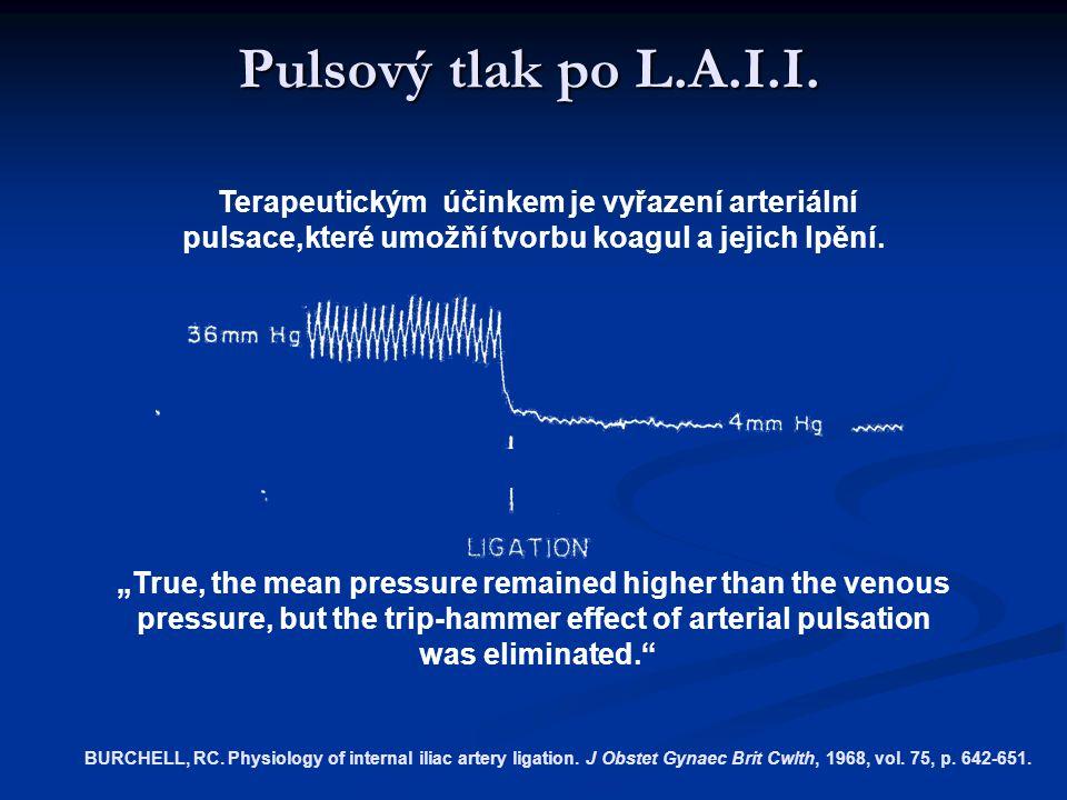 Pulsový tlak po L.A.I.I. Terapeutickým účinkem je vyřazení arteriální pulsace,které umožňí tvorbu koagul a jejich lpění.