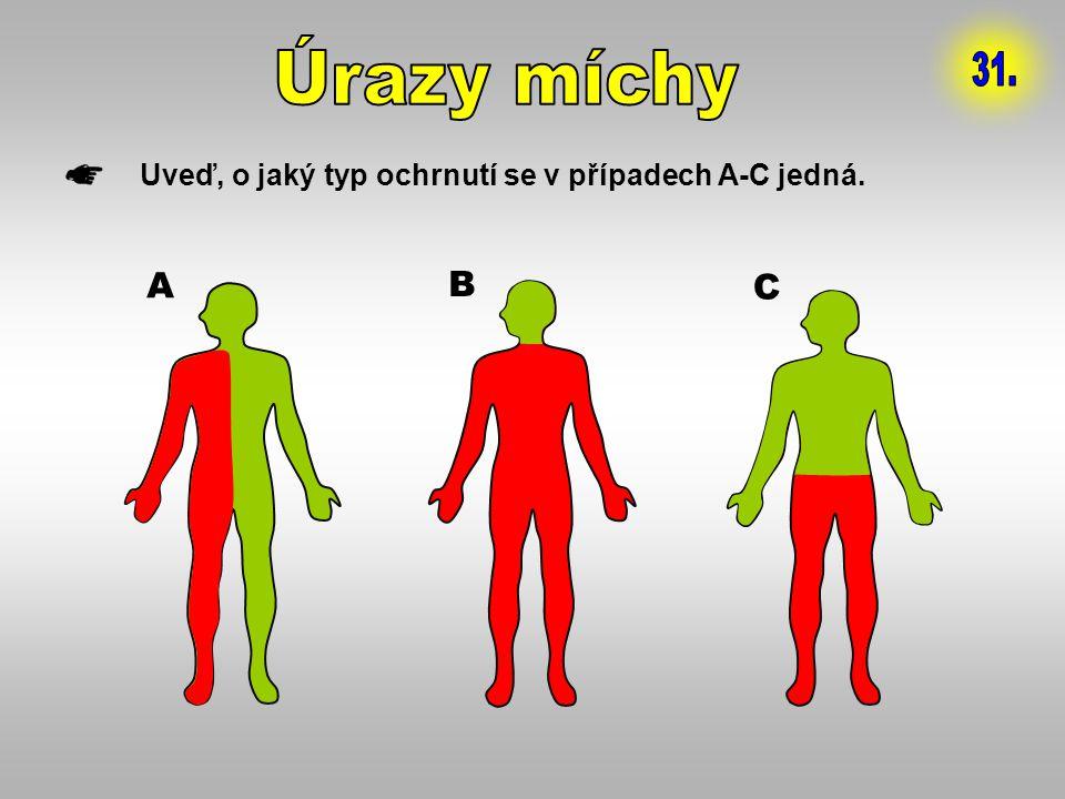 Úrazy míchy 31. Uveď, o jaký typ ochrnutí se v případech A-C jedná. A B C