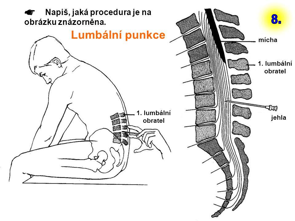 8. Lumbální punkce Napiš, jaká procedura je na obrázku znázorněna.