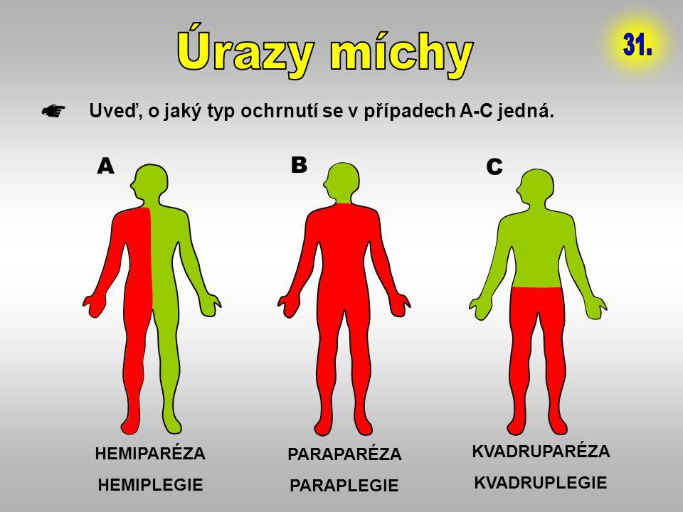 Úrazy míchy 31. Uveď, o jaký typ ochrnutí se v případech A-C jedná. A. B. C. HEMIPARÉZA. HEMIPLEGIE.