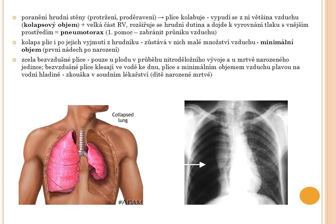 poranění hrudní stěny (protržení, proděravení) → plíce kolabuje - vypudí se z ní většina vzduchu (kolapsový objem) + velká část RV, rozšiřuje se hrudní dutina a dojde k vyrovnání tlaku s vnějším prostředím = pneumotorax (1. pomoc – zabránit průniku vzduchu)