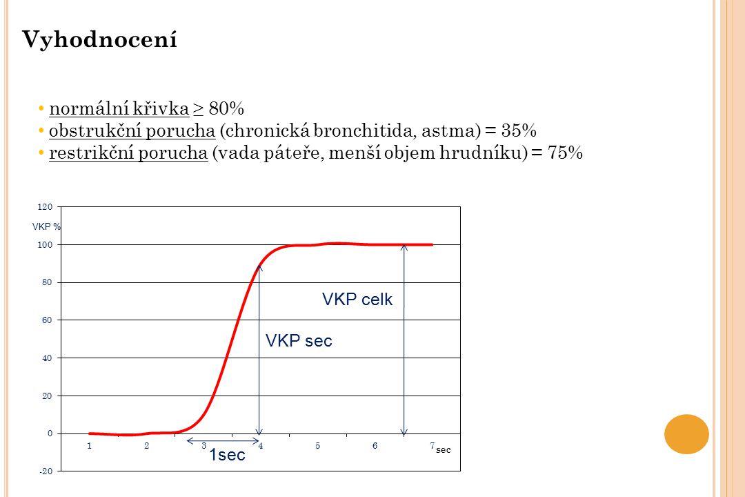 Vyhodnocení normální křivka ≥ 80%